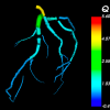 Computer model image of blood vessels